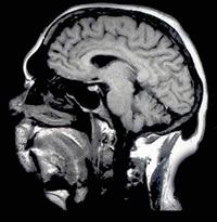 Chronic pain patients had a decrease of brain size the equivalent to 10-20 years of normal aging.