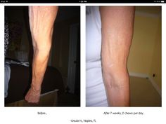 Tighten your skin with Hydrolyzed Collagen Protein