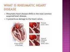 22 Best Rheumatic Heart Disease images | Rheumatic fever ...