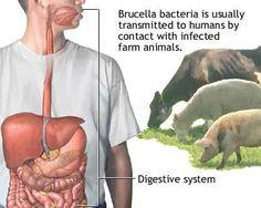 Molecular Diagnosis of Brucellosis