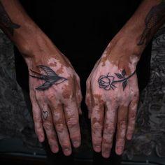#blxckink#blxckink_travelling #blacktattoo#blacktattooing#blackwork#blackworktattoo#blackworktattoos#blacktattooart#blacktattooartist#blacktattoodesign#blacktattoowork#blacktattooist#floraltattoo#floraltattoos#floraltattoodesign#vitiligo#vitiligobeaty#vitiligotattoo#armtattoo#legtattoo#backtattoo Floral Tattoo Design, Tattoo Designs, Back Tattoo, I Tattoo, Rose Hand Tattoo, Classic Tattoo, Free Day, Leg Tattoos, Traditional Tattoo