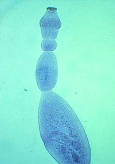Echinococcus granulosus tapeworm