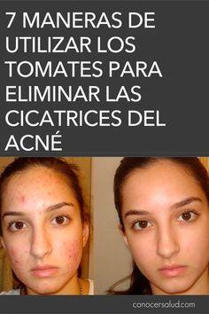 7 maneras de utilizar los tomates para eliminar las cicatrices del acné #salud
