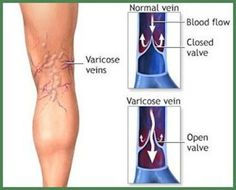 Women are more susceptible to thrombosis and varicose than men, and numerous of them suffer from these issues. Varicose veins most commonly appear on the legs and ankles, and are a result of the accumulation of...