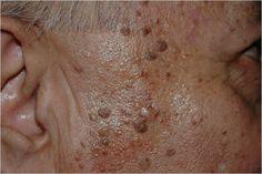 許多老年人的體表,尤其是臉部和手背布滿了點點的褐斑,這是體內自由基作用的結果。人體內的自由基是一種衰老因子,它作用於皮膚,引起