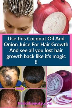 Let Start Slim Today: Use this Coconut Oil And Onion Juice For Hair Growth And see all you lost hair growth back like it's magic Hair Remedies For Growth, Home Remedies For Hair, Hair Growth Treatment, Hair Loss Remedies, Hair Fall Remedy Home, Onion Oil For Hair, Onion Juice For Hair, Hair Oil, Onion Hair Growth