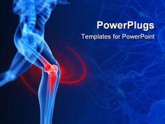 Httpppt ltystalgraphics knee powerpoint templates free download best knee powerpoint templates crystalgraphics exclusive toneelgroepblik Images