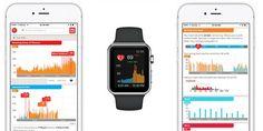 Apple Watch Cardiogram