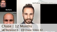Hair Transplant Results | Hair Transplant Before and After 12 Months (Chase)