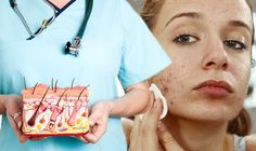 Acne: A nutritionist has recommended seven ways to treat adult acne