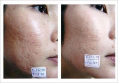 Acne scarring on cheek before and after using Dermaroller #GetRidOfStretchMarks #StretchMarksBeforeAndAfter #AcneScarsPitted #PimplesUnderTheSkin Adult Acne Treatments, Pimples On Buttocks, Stretch Marks On Thighs, Pimples Under The Skin, Scar Remedies, Stretch Mark Remedies, Scar Treatment, Derma Roller, Beauty