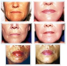 Glycolic Peels - Before and After
