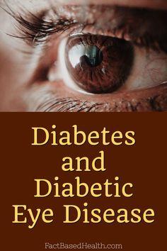 Diabetes and Diabetic Eye Disease - Fact Based Health Type 2 Diabetes Symptoms, Diabetes Month, Type 1 Diabetes, Diabetes Mellitus, Health Trends, Health Tips, Diabetic Eye Disease, Diabetic Retinopathy, Diabetic Tips
