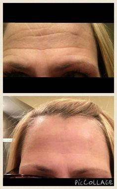 JEUNESSE GLOBAL INTRODUCES... Luminesce™ Before & After on forehead.  Watch video here https://labarta.jeunesseglobal.com/en-US/luminesce/LUMINESCE