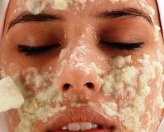 Homemade Botox - You don& have to spend a lot to get taut skin and youthful face! - Cure For Nature Cucumber Face Mask, Face Peel, Dark Spots On Skin, Brown Spots, Skin Spots, Bright Skin, Tips Belleza, Acne Scars, Face Care