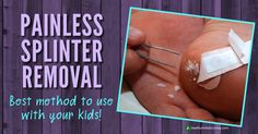 Painless Splinter Removal - Healthy Holistic Living