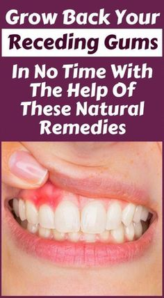 Grow Back Receding Gums, Heal Cavities, Tooth Sensitivity, Tooth Pain, Best Oral, Oral Hygiene, Oral Health, Health Care, Health Tips