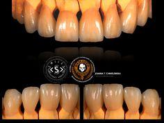 Rekonstrukcja zębów naśladująca naturę. Nie każdy pacjent chce mieć śnieżnobiałe zęby by wszyscy wiedzieli że przeszedł leczenie protetyczne , niektórzy stawiają na naturę :)