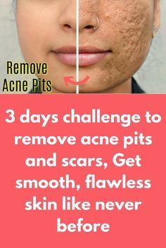 3 days challenge to remove acne pits and scars, Get smooth, flawless skin like never before Depending on how deep your scars are, you may be able to smooth them out with natural remedies. Natural remedies might take time depending on severity but they work for sure and there is no side effects. Step 1 – Scrubbing You need Sugar Lemon Rose water What to do: In a …