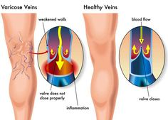 How to get rid of varicose veins?Many people who have varicose veins do not experience any pain or discomfort,and do not require any treatment.