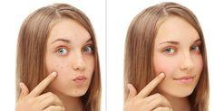 El bicarbonato de sodio puede ayudarte a reducir el acné, ¡te lo contamos aquí!