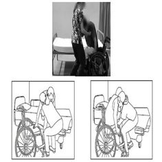 In part 1, we discussed in detail about importance of independence in Bed to wheelchair transfer techniques to live active life after spinal cord injury, and some general rules and techniques for easy and safe transfer. In this article, we will read about Bed to wheelchair transfer techniques of paraplegics and quadriplegics.
