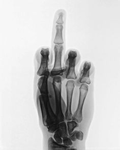 'Fuck You', Skeletal X-ray of hand giving the finger. Black and white photo. Calliope Torres, Radiology Humor, Medical Humor, Illustration Inspiration, Peter Quill, Wade Wilson, Art Plastique, Creepy, Artsy