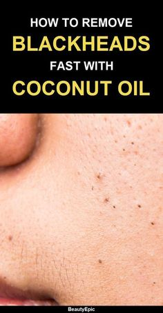 How to use coconut oil to remove blackheads