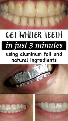 Get whiter teeth in just 3 minutes using these simple tricks that involve aluminum foil, coconut oil, baking soda and turmeric! Get whiter teeth in just 3 minutes using these simple tricks that involve aluminum foil, coconut oil, baking soda and turmeric! Teeth Whitening Remedies, Natural Teeth Whitening, Whitening Kit, Skin Whitening, Teeth Care, Skin Care, Get Whiter Teeth, Baking Soda Shampoo, Baking Soda Scrub