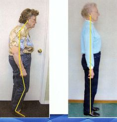 Amazing what some preventative chiropractic can do.  How do you want to age?