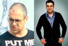 Garik Martirosyan contro i trapianti di capelli: ecco come è riuscito a sconfiggere la calvizie!