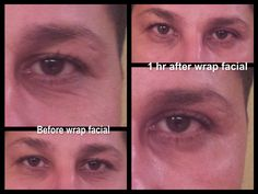 Would you like to try a facial for free? www.shrinkyourbellytoday.com www.valeriesparr.com www.facebook.com/shrinkyourbellytoday