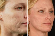 Fractional laser skin resurfacing maximizes aesthetic outcomes while minimizing Fractional Laser, Vein Removal, Skin Resurfacing, Facial Rejuvenation, Dermal Fillers, Acne Scars, 6 Years, Side Effects