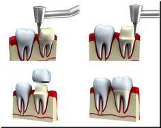 Tratamientos dentales en Clínica Vida Dental, Guatemala