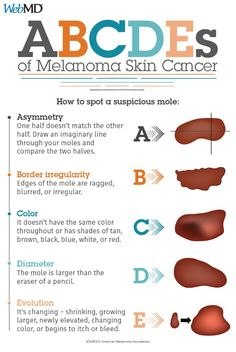 Can you spot a suspicious mole? Know the ABCDEs of melanoma: