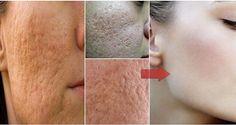 De nombreux problèmes de peau peuvent être traités naturellement grâce à des astuces efficaces. C'est le cas notamment des pores dilatés...