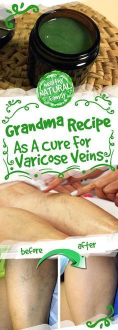 Grandma Recipe As A Cure For Varicose Veins – Toned