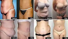 Simply Health and Beautiful On Garcinia Cambogia Weight-Loss Treatment Reduce Weight, How To Lose Weight Fast, Simply Health, Lose 20 Pounds Fast, Celebrity Diets, Womens Health Magazine, Womens Wellness, Hair Loss Remedies, Best Weight Loss