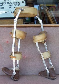 Many of our photo archives show these vintage child leg braces from when we used to host a telethon. It's amazing how much they have changed!---These are the brown high top boot like shoes I wore. I hated them.