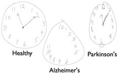 Detecting Alzheimer's Disease by Drawing a Clock Face with a Digital Pen - NeuroscienceNews.com - Coupled with a digital pen, new models from the MIT Computer Science and Artificial Intelligence Lab can help detect dementia and other cognitive disorders earlier than ever before. Credit: The researchers/MIT #neuroscience #science #alzheimers #health