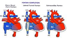 Univentricular Heart (Single Ventricle Syndromes)