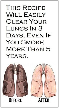 This Recipe Will Easily Clear Your Lungs in 3 Days Even If You Smoke More Than 5 Years! Natural Medicine, Herbal Medicine, Lung Cleanse Detox, Lung Cleanse Smokers, Health Diet, Health Fitness, Fitness Hacks, Health Care, Clear Lungs