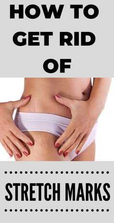 How To Get Rid Of Stretch Marks Naturally At Home #skin #skincare #skincaretips #beautytips Cellulite Wrap, Causes Of Cellulite, Reduce Cellulite, Anti Cellulite, Cellulite Exercises, Cellulite Remedies, Skin Bumps, Skin Moles, Acne Skin