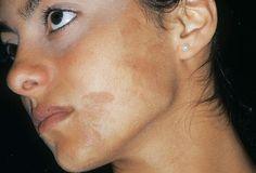 Este remedio casero 100% natural tiene la propiedad delimpiar tu cara de manchas oscuras, manchas por la edad y manchas por el sol, al mismo tiempo que n