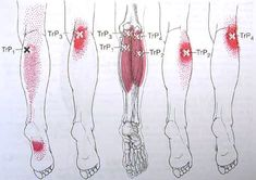 trigger point of lower leg | Gastrocnemius Trigger Point Diagram
