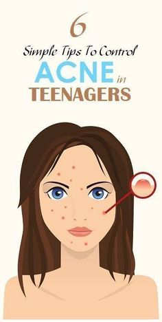 Acne cannot be cured but it can be controlled until hormones regulate to normal levels. Acne is cause by 4 factors:- Inflammation or irritation in the oil glands of the skin Over production of oil Over production of skin cells which causes clogged pores O Cystic Acne Remedies, Cystic Acne Treatment, Back Acne Treatment, Natural Acne Treatment, Home Remedies For Acne, Acne Treatments, Pimples Overnight, How To Get Rid Of Pimples, Acne Solutions