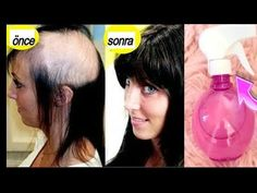 Εφαρμόστε μόνο τριήμερη τριχόπτωση | Σούπερ γρήγορη επέκταση μαλλιών, επισκευή μαλλιών - YouTube Makeup Tips, Eye Makeup, Hair Makeup, Fast Hairstyles, Stop Hair Loss, Hair Loss Treatment, Hair Repair, Youtube, Grow Hair