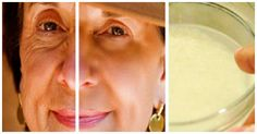 Wrinkles are the most hated sign of aging, especially for women. All around the world, women do everything they can to cover these awful signs of aging by taking good care of the skin, especially when it comes to the face, where they are most visible. In order to reduce the appearance of wrinkles, women …