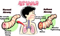 Pediatric Asthma Medication Chart -- More info could be found at the image url.