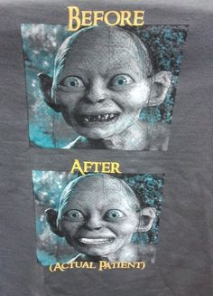 The best before and after smile makeover to date!